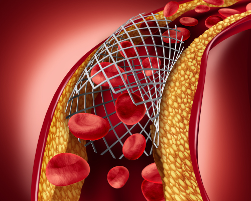Treatment of Angioplasty And Stenting at Vascular Clinic