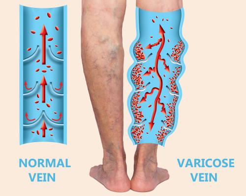 Normal Vein v/s Varicose Vein