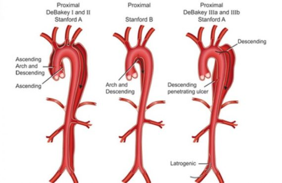 Aortic Dissection Management & Treatment