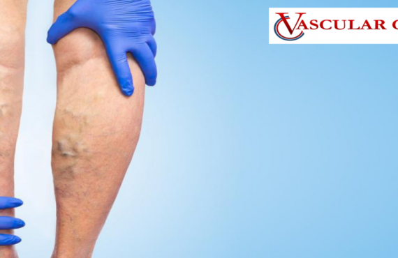 Benefits Of Laser Treatment For Varicose Veins