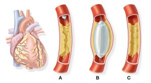 Angioplasty or stenting