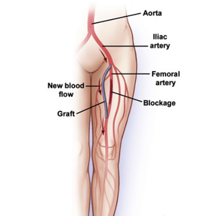 Femoropopliteal And Femorodistal Bypass