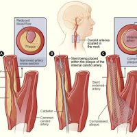 CAROTID DISEASE AND STROKE2
