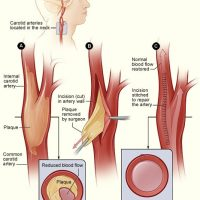 CAROTID DISEASE AND STROKE3